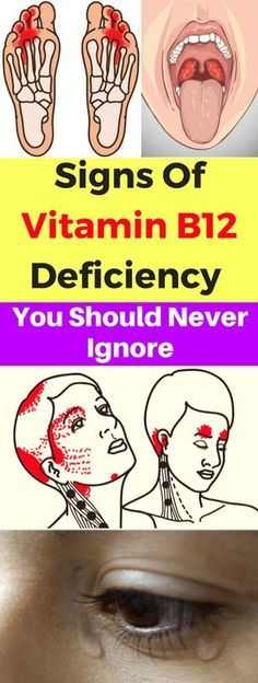 Signs Of Vitamin B12 Deficiency You Should Never Ignore