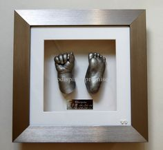 silver hand and foot cast.