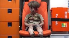 Dedicated to the power hungry monsters who brought about these tragedies.  The face of war...stamped forever onto innocent people...and especially the children.  Drive out Assad, then his friend Putin who helped bring this about.   So sad. The brother of the Syrian boy whose impassive, bloodied and dust-covered image…