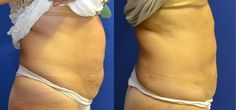 Liposuction under local anesthesia