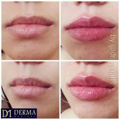 LIP FILLERS Beautiful lips naturally enhanced with Juvederm. Bottom lip was slightly too heavy and big so balance, shape, cupids bow and contouring was created using microdroplets technique. - For bookings and price list please visit .uk or email clinics Lip Injections Juvederm, Cosmetic Surgery Prices, Cupids Bow Lips, Lip Surgery, Lip Augmentation, Lip Shapes, Big Lips, Lip Fillers, Beautiful Lips