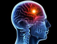 8 advertencias que hace tu cuerpo antes de un infarto cerebral