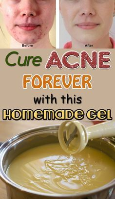 Get Rid Of Acne Forever With This Homemade Gel