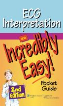 ECG Interpretation: An Incredibly Easy Pocket Guide, Second Edition provides time-starved nurses with the essentials of electrocardiography in a streamlined, bulleted, and highly visual format. The bo Nclex Rn Questions, Reading Online, Books Online, Nursing Procedures, Dosage Calculations, Medical Surgical Nursing, Cardiac Nursing, Fluid And Electrolytes, Fundamentals Of Nursing