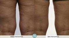 NeriumFirm 30 Day $$ Back Guarantee www.brookemccarty.nerium.com