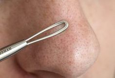 How to Unclog Pores on the Face | LIVESTRONG.COM