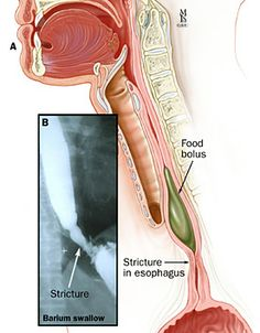 Esophageal stricture showing obstruction of food bolus - great scope pictures showing Zenkers diverticulums