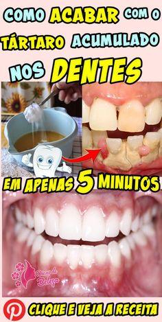 81d322188 Como acabar com o tártaro acumulado nos dentes!  tártaro  tartarodentario   tartarodentes
