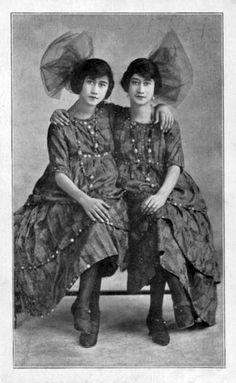 anna and mary: honduran conjoined twins (circa 1928?)