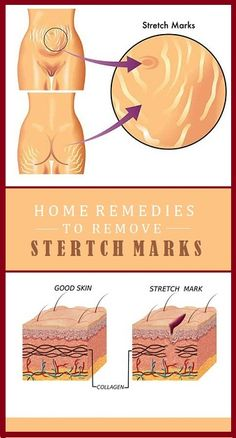 Stretch marks can be found all over the body, and they affect both men and women. The main causes of stretch marks are pregnancy and rapid weight gain or weight