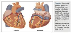 From: Options for Stem Cell Delivery in Cardiology In: Cath Lab Digest 2014;22(3)28.