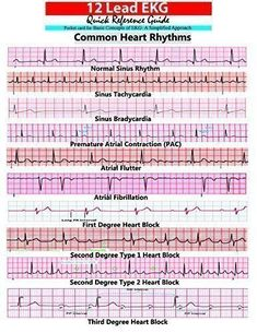 The ultimate guide to EKG (ECG) interpretation for nurses. Covering atrial and ventricular rhythms as well as blocks. Cardiac Nursing, Nursing Mnemonics, Ekg Interpretation, Nursing School Notes, Nursing Schools, Lpn Schools, Critical Care Nursing, Nursing Tips, Nursing Cheat Sheet