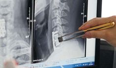 World's First 3D Printed Vertebrae Are Implanted Into Patients in China http://3dprint.com/12253/3d-printed-vertebra/