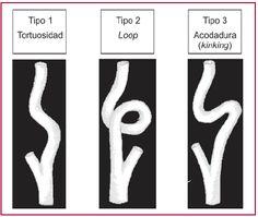 Vascular Ultrasound, Carotid Artery, Lululemon Logo, Acv, Brain, Science, Color, Medicine, Ultrasound