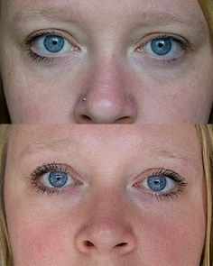 One of my favorite products is the Rodan + Fields REDEFINE Multi-Function Eye Cream!! Look at her results, how incredible is that?!