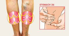 What Causes Varicose Veins and How to Help Get Rid of Them