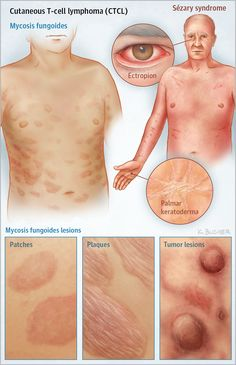 Cutaneous T-Cell Lymphomas JAMA Dermatol. 2017;153(6):620. doi:10.1001/jamadermatol.2017.0361
