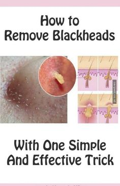We all want to have clear skin, but those little parasites called blackheads come between our wishes. Blackheads are very small pimples with no skin on them, and because of that when they become ex…