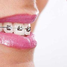 http://impoodontologia.com.br/aparelhos-ortodonticos.php A Impoodontologia é uma clínica odontológica com mais de 26 anos de experiência na instalação de aparelhos ortodônticos. Oferecemos aos pacientes o que existe de mais moderno, eficiente e seguro em aparelhos ortodônticos
