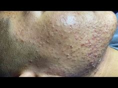 """Acne Treatment For """"Hung"""" (P4)   Điều Trị Mụn Cho Hùng (P4) = SacDepSpa#189 - YouTube Cute Hairstyles For Medium Hair, Medium Hair Styles, Ponytail Hairstyles, Covering Acne, Whitehead Removal, Pimple Popping, Satisfying Video, Yoga For Weight Loss, Acne Treatment"""