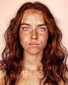 This Photographers Work Reveals the True Beauty of People with Freckles Redheads Freckles, Freckles Girl, Beautiful Freckles, Gorgeous Redhead, Pretty People, Beautiful People, Freckle Face, Poses References, Natural Redhead