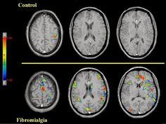LA FIBROMIALGIA Y EL CEREBRO: NUEVAS PISTAS REVELAN CÓMO SE PROCESA EL DOLOR http://fibromialgiadolorinvisible.blogspot.com.ar/2015/05/la-fibromialgia-y-el-cerebro-nuevas.html