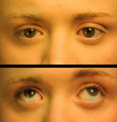 Image result for Nystagmus causes, symptoms & treatments