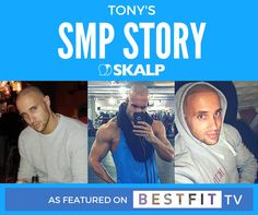 Read about Tony's SMP ( scalp micro pigmentation) story with Skalp® as featured on BESTFIT TV. #hairloss #confidence #workout #bestfit #menshealth #microtattoo #hairtreatment #formen #menshair #shavedhead