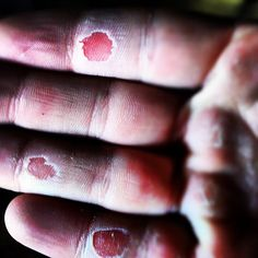 / Scott Hickle The, um, not so awesome side of climbing! Sport Climbing, Rock Climbing, Mountain Climbers, Extreme Sports, Mountaineering, Wow Products, Atc, Bouldering, Outdoors