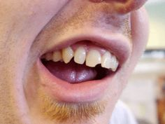 Chipped Tooth If you are considering a local dentist click on the image to learn more. Dental Images, Local Dentist, Dental Procedures, Tooth, Dental Caps, Teeth