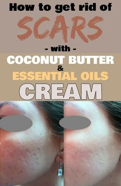 How to get rid of scars with coconut butter and essential oils cream - JustBeautyTips.net