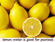Benefits of lemon water for psoriasis are enormous. Lemon water is a natural digestive tonic, helps in liver detoxification and promotes healthy gut flora.