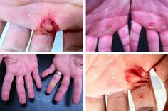 How to avoid tearing and take care of CrossFit hands.