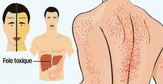 10-signes-que-votre-foie-est-endommage