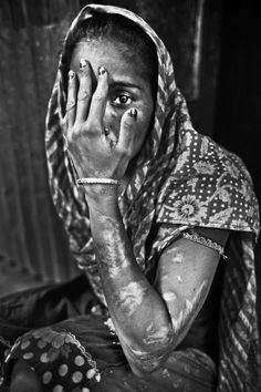 These Heart-Wrenching Pictures Offer A Glimpse Into Surviving Acid Attacks In Bangladesh