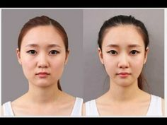 korean women plastic surgery before and after korean women plastic surgery before and after
