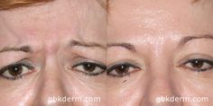 botox smooths out wrinkles in between the eyes   Botox San Diego