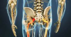 Cervical spinal stenosis extreme sciatic nerve pain,how to get relief from sciatica how to treat sciatica leg pain,lower back pain relief physical therapy for sciatic pain. Sciatica Pain Treatment, Sciatica Pain Relief, Sciatic Pain, Sciatic Nerve, Nerve Pain, Chronic Sciatica, Severe Sciatica, Sciatica Symptoms, Sciatica Exercises