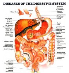Google Image Result for http://www.allaboutparasites.com/images/diseases-of-the-digestive-system.jpg