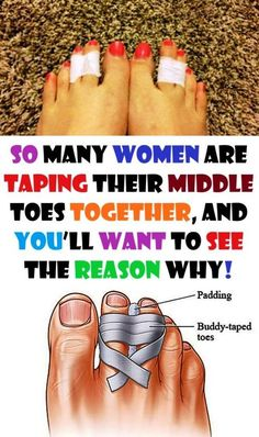 Tape your third and fourth toe together to penetrate high heels. Using medical tape relieves pressure on the nerve between the toes three and four, and prevents pain in your foot ball. Fitness Motivation, Fitness Tips, Shoe Stretcher, Rubber Flip Flops, Stress Causes, Natural Health Tips, Natural Skin, Natural Beauty, Foot Pain