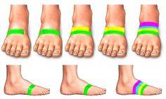Taping your feet to avoid shin splints or for shin splint pain. Tennis is a killer shin splint sport. Fitness Motivation, Fitness Tips, Running Motivation, Health Tips, Health And Wellness, Health Fitness, Roller Derby, Shin Splints Taping, K Tape