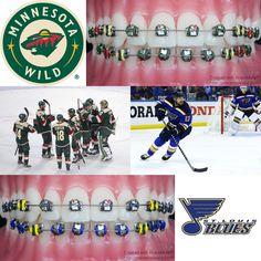 Tomorrow the #MinnesotaWild take take on the #StLouisBlues  #Minnesota #StPaul #StLouis #Blues #Missouri  #NHL #hockey #icehockey #braces #orthodontics #orthodontist #dentist #dental #dentistry