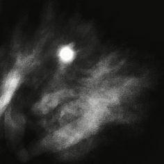 Der Mond 5