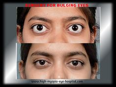 For any kind of eye problems, please visit us: saraswathieyehospital@gmail.com Our website: http://goo.gl/Rwr7n1