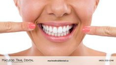 Your smile is one of your most valuable assets. It creates an almost instant visual impact on the people you meet and the brighter your smile, the greater the impression of beauty, youth, vitality and health you portray. At Macleod Trail Dental, we're committed to helping our patients look and feel their very best. With our cost-effective, efficient in office teeth whitening solution, we promise to give you that bright, white smile you've always wanted. /Calgary/YYC/