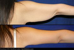 "ARM LIFT: when you lose the battle to tone your triceps, ""bat wings"" can be removed via brachioplasty.  Excess skin and fat are removed, but will leave a scar on the inner back side of the arm."