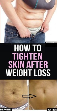 Beauty&fitness with A.bari: How To Tighten Skin After Weight Loss? Weight Loss Meals, Fast Weight Loss, Healthy Weight Loss, Weight Loss Tips, Loose Weight In Stomach, Loose Weight Food, Weight Loss Rewards, Weight Loss Drinks, Fat Fast