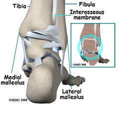 Stress Fracture Ankle