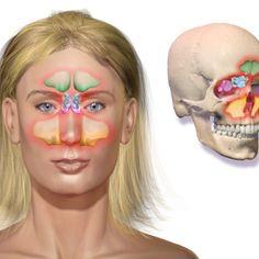 Vista previa del artículo Qué es una infección en los senos nasales (sinusitis)