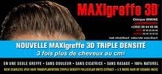 MAXIgreffe3D